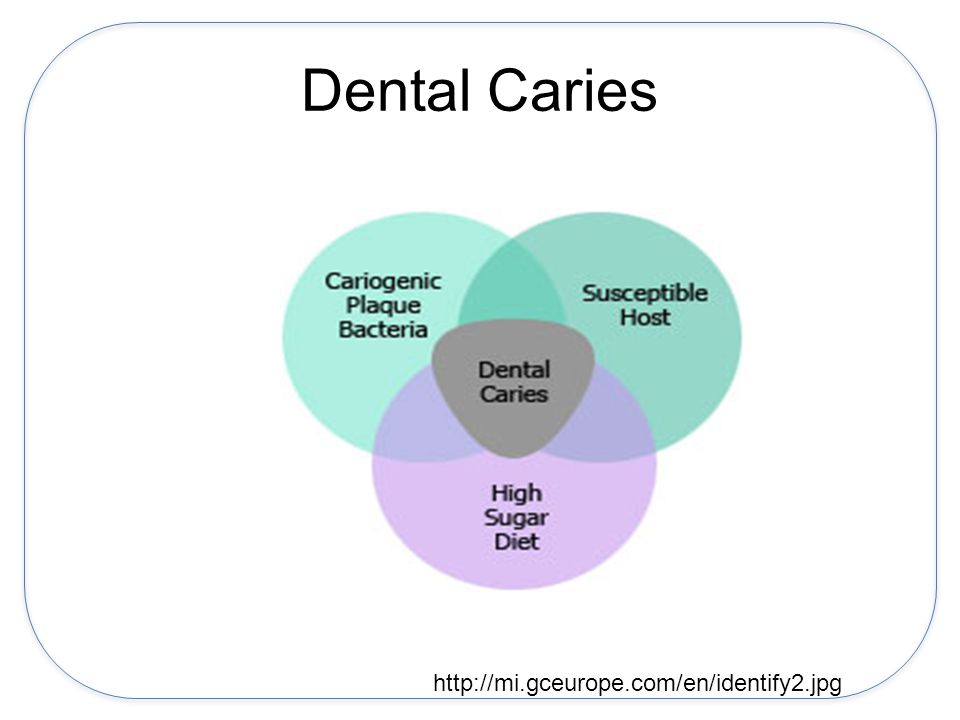 Early Childhood Caries Sequellae of dental caries Pain Poor sleep due to pain Problems with school readiness and learning Poor nutrition due to pain eating Need for sedation or general anesthesia –Problems with access to this care Negative dental experiences Emergency room care Hospitalization for severe dental infections