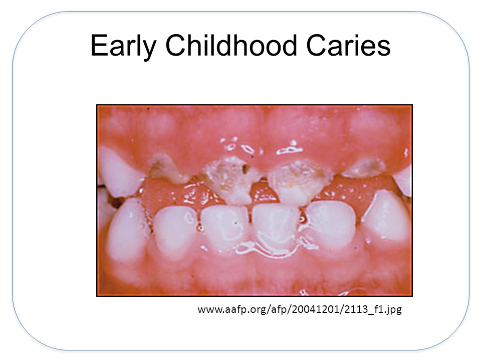 Early Childhood Caries www.aafp.org/afp/20041201/2113_f1.jpg