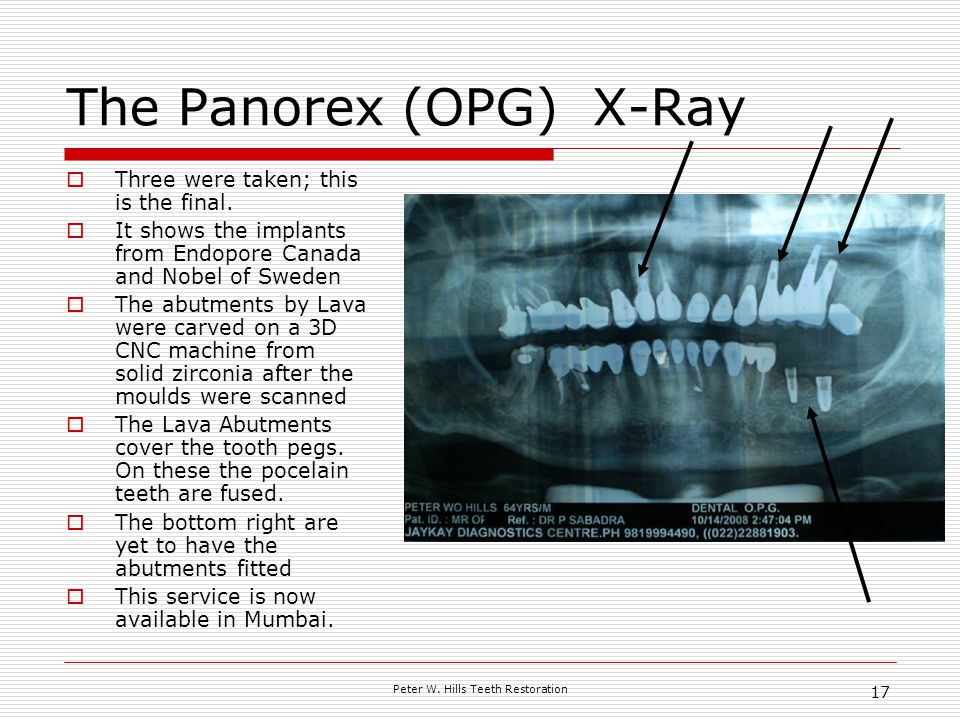 Peter W. Hills Teeth Restoration 17 The Panorex (OPG) X-Ray Three were taken; this is the final.