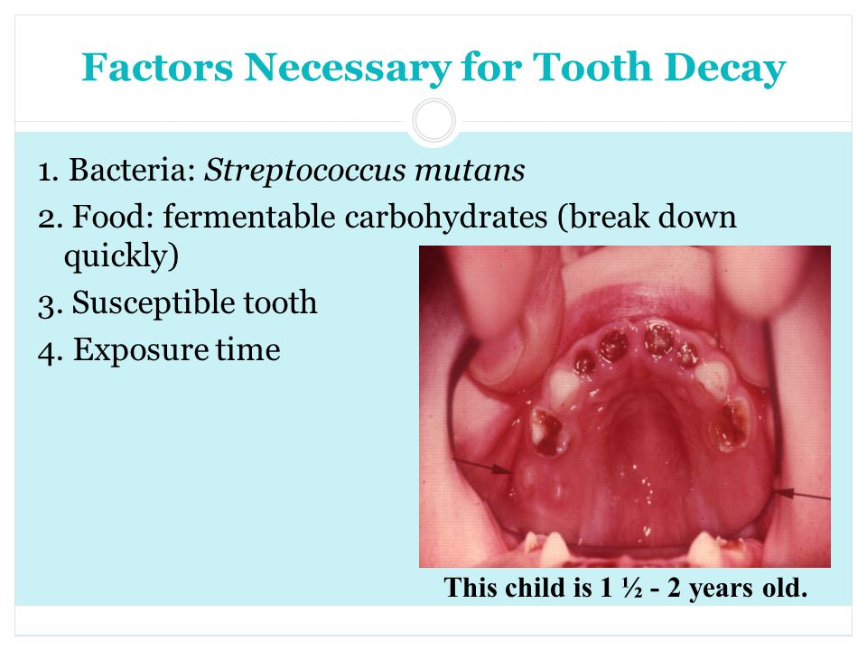 Factors Necessary for Tooth Decay 1. Bacteria: Streptococcus mutans 2. Food: fermentable carbohydrates (break down quickly) 3. Susceptible tooth 4. Ex