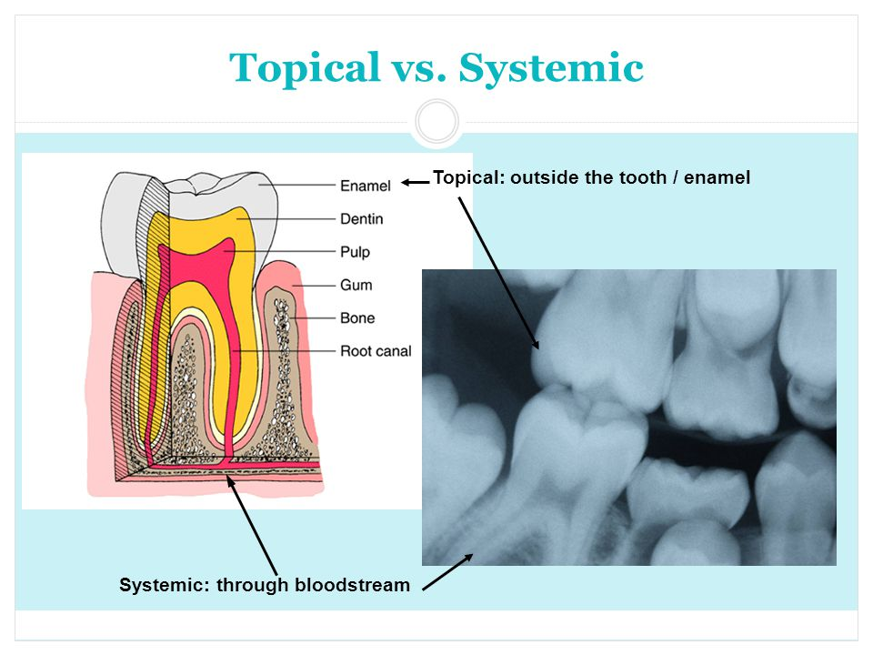 Topical vs. Systemic Systemic: through bloodstream Topical: outside the tooth / enamel