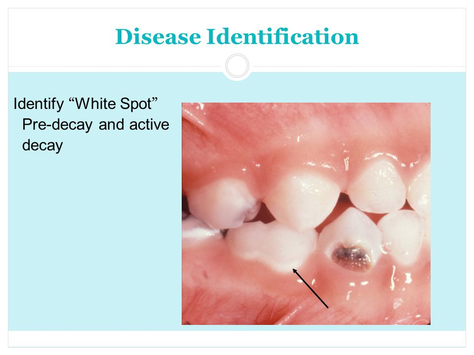 Disease Identification Identify White Spot Pre-decay and active decay
