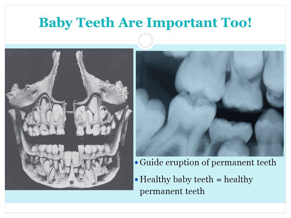 Baby Teeth Are Important Too! Guide eruption of permanent teeth Healthy baby teeth = healthy permanent teeth