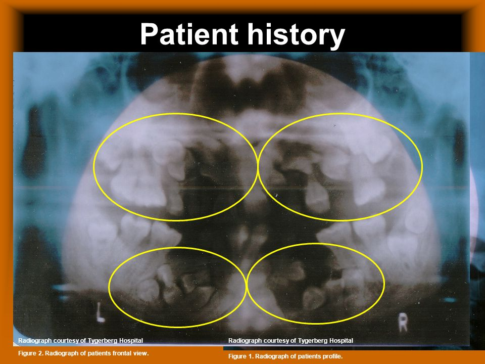 Patient history 18 year-old female Has CCD syndrome Is asthmatic Extreme tooth abnormalities Absent collarbone Still has primary teeth Figure 1.