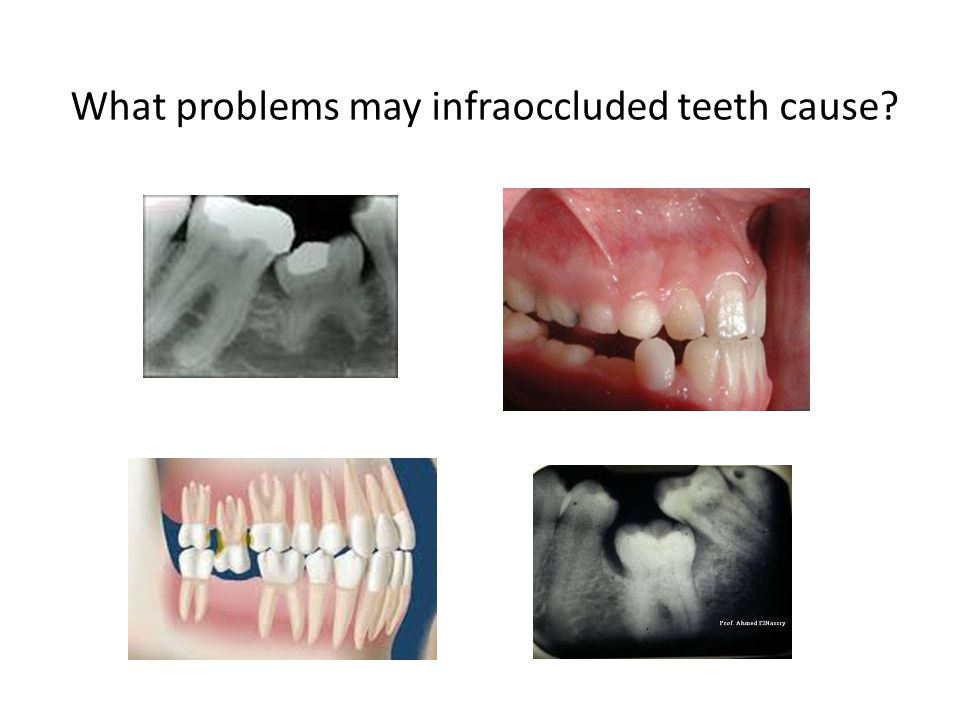 What problems may infraoccluded teeth cause?