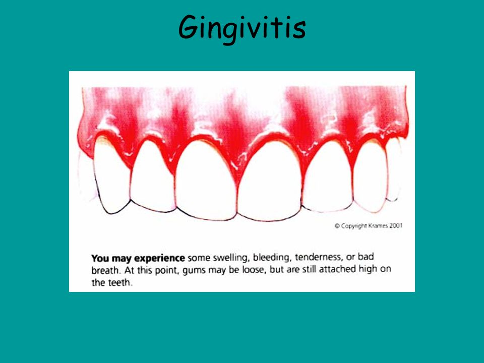 Gingivitis Definition-The swelling or discoloration of the gums. Most people are unaware that they have it because it is painless in most cases. It is