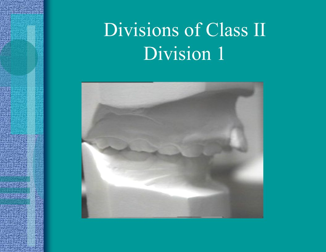 Divisions of Class II Division I - excess OJ Division II -