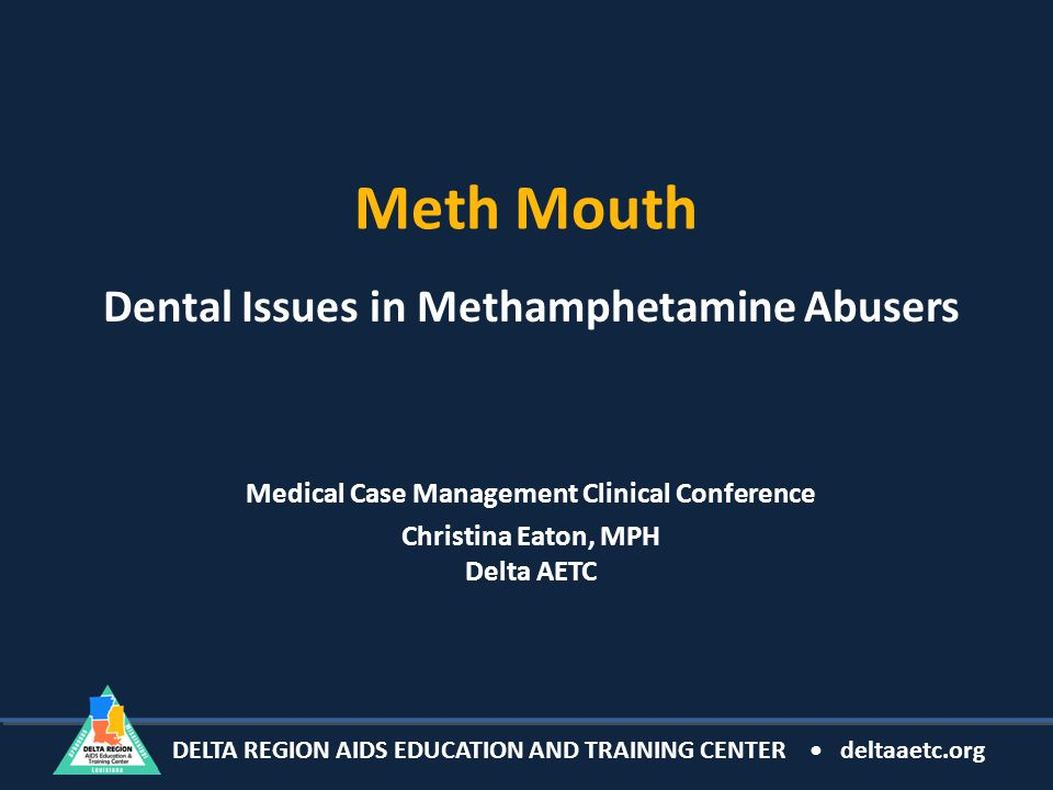 DELTA REGION AIDS EDUCATION AND TRAINING CENTER deltaaetc.org Meth Mouth Dental Issues in Methamphetamine Abusers Medical Case Management Clinical Conference Christina Eaton, MPH Delta AETC