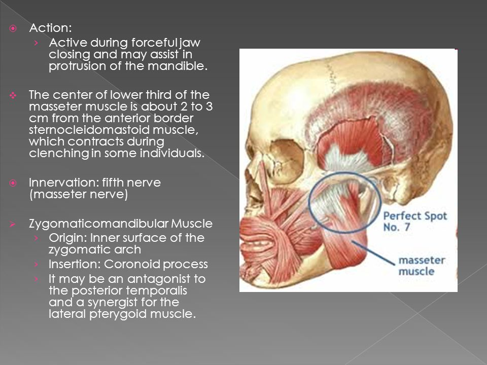 Action: Active during forceful jaw closing and may assist in protrusion of the mandible. The center of lower third of the masseter muscle is about 2 t