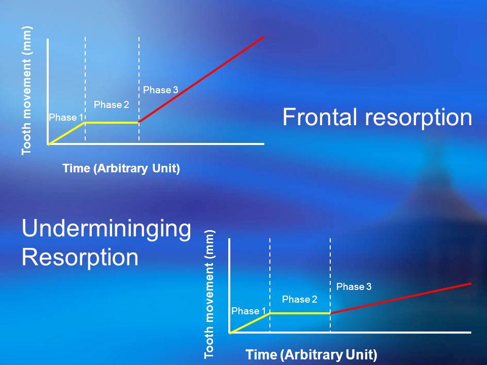 Phase 1 Phase 3 Phase 2 Tooth movement (mm) Time (Arbitrary Unit) Phase 1 Phase 3 Phase 2 Tooth movement (mm) Time (Arbitrary Unit) Frontal resorption Undermininging Resorption