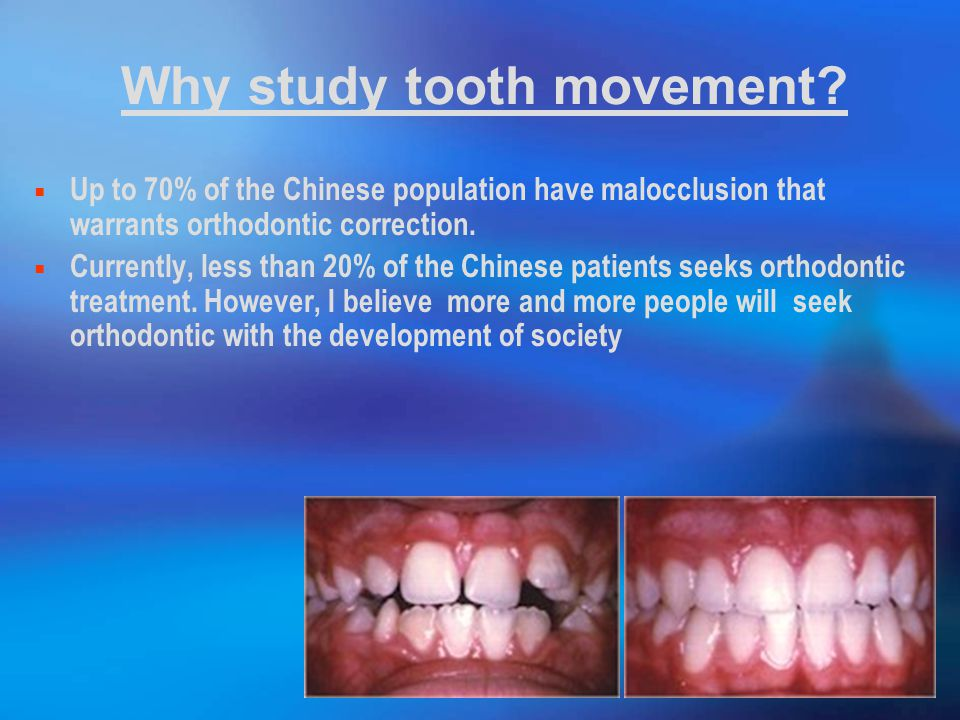 Why study tooth movement.