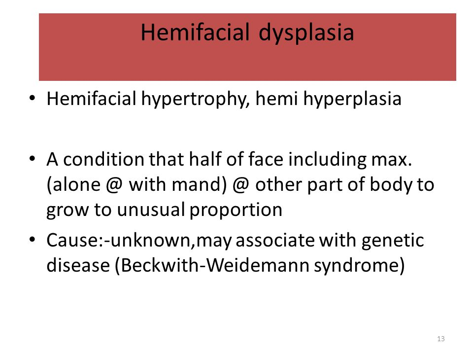 Hemifacial dysplasia Hemifacial hypertrophy, hemi hyperplasia A condition that half of face including max. (alone @ with mand) @ other part of body to