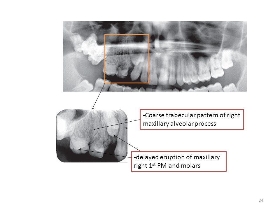24 -Coarse trabecular pattern of right maxillary alveolar process -delayed eruption of maxillary right 1 st PM and molars