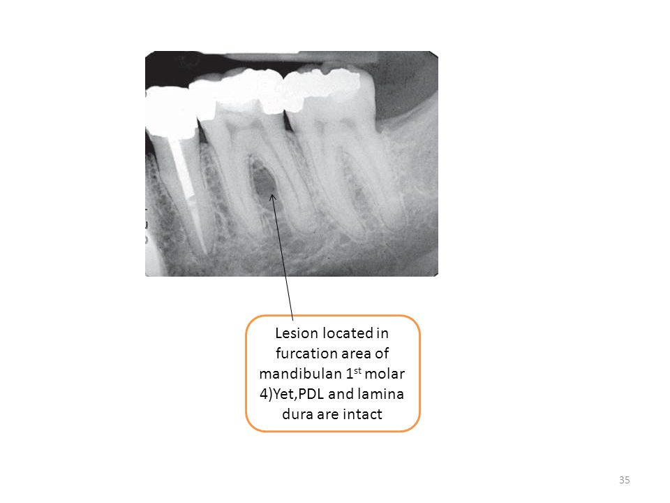 35 Lesion located in furcation area of mandibulan 1 st molar 4)Yet,PDL and lamina dura are intact