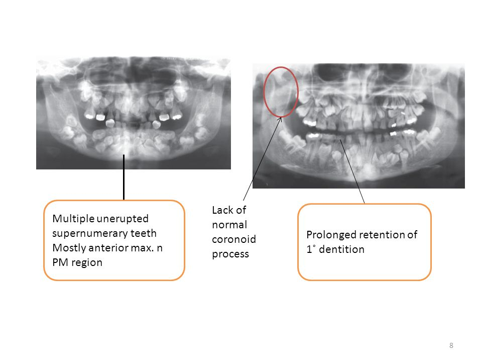 8 Lack of normal coronoid process Multiple unerupted supernumerary teeth Mostly anterior max. n PM region Prolonged retention of 1˚ dentition