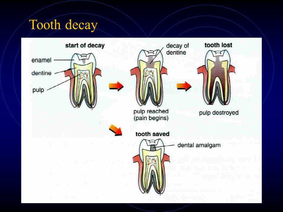 Milk Teeth and Permanent Teeth Milk teeth - appear in babies; - totally 20 in man Permanent teeth - replace milk teeth in later years; - cannot replac
