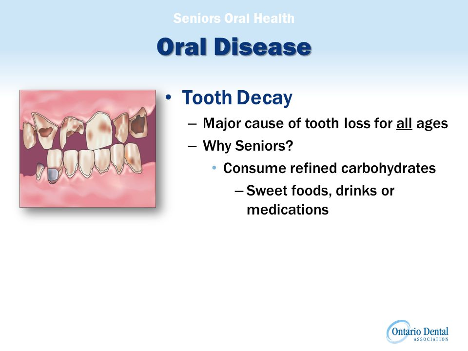 Seniors Oral Health Oral Disease Tooth Decay continued – Minimizing Tooth Decay: Substitute: refined sugars/artificial sweeteners Use fluoride to remineralize the surface to avoid tooth decay Use anti-bacterial mouth rinse to reduce level of bacteria in the mouth Brush and floss twice daily