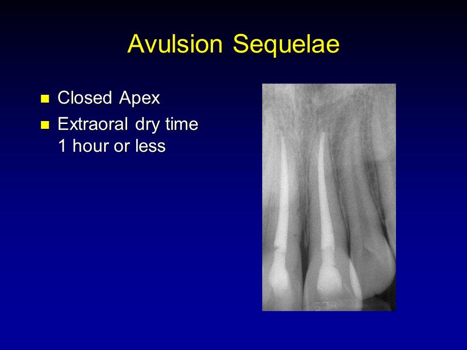 Avulsion Sequelae Closed Apex Closed Apex Extraoral dry time 1 hour or less Extraoral dry time 1 hour or less
