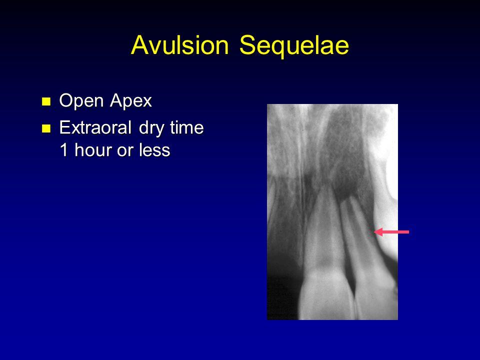Avulsion Sequelae Open Apex Open Apex Extraoral dry time 1 hour or less Extraoral dry time 1 hour or less
