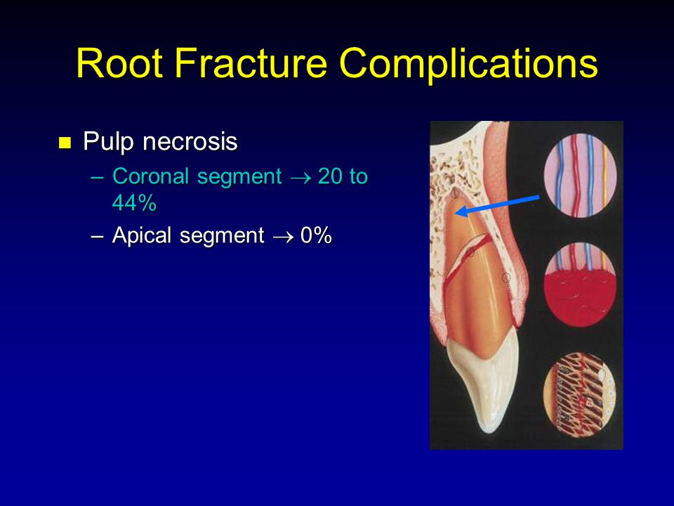 Root Fracture Complications Pulp necrosis Pulp necrosis –Coronal segment 20 to 44% –Apical segment 0%