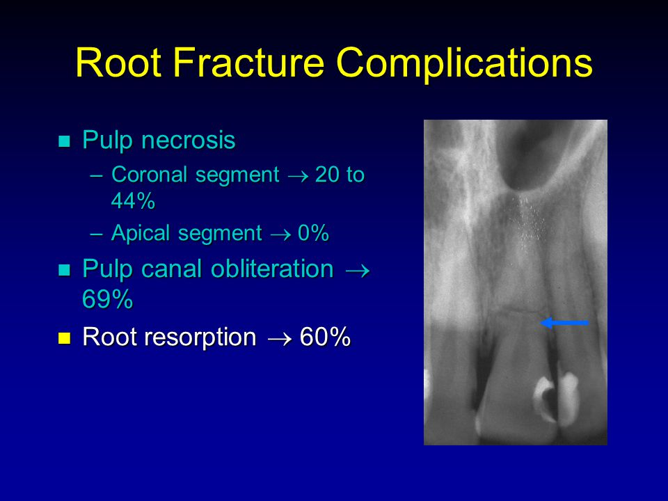 Root Fracture Complications Pulp necrosis Pulp necrosis –Coronal segment 20 to 44% –Apical segment 0% Pulp canal obliteration 69% Pulp canal obliteration 69% Root resorption 60% Root resorption 60%