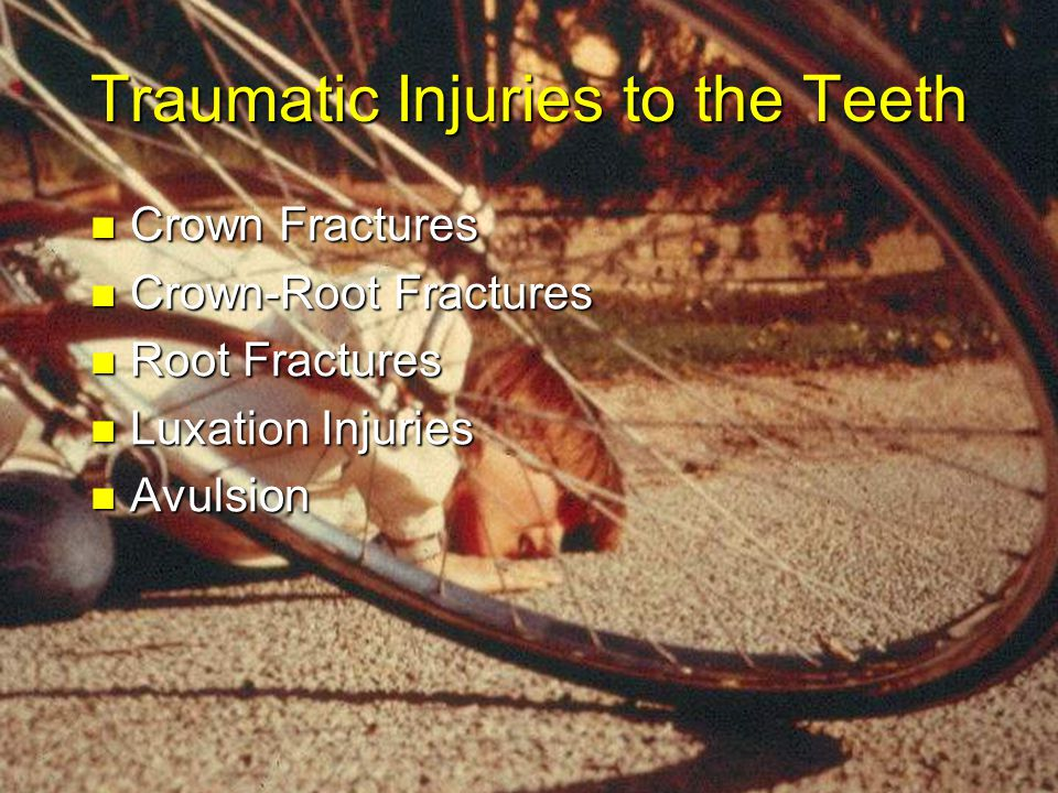 Traumatic Injuries to the Teeth Crown Fractures Crown Fractures Crown-Root Fractures Crown-Root Fractures Root Fractures Root Fractures Luxation Injuries Luxation Injuries Avulsion Avulsion