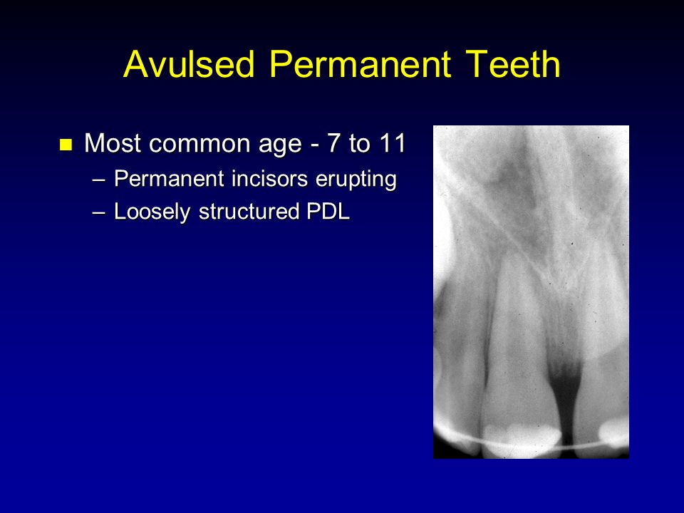 Avulsed Permanent Teeth Most common age - 7 to 11 Most common age - 7 to 11 –Permanent incisors erupting –Loosely structured PDL
