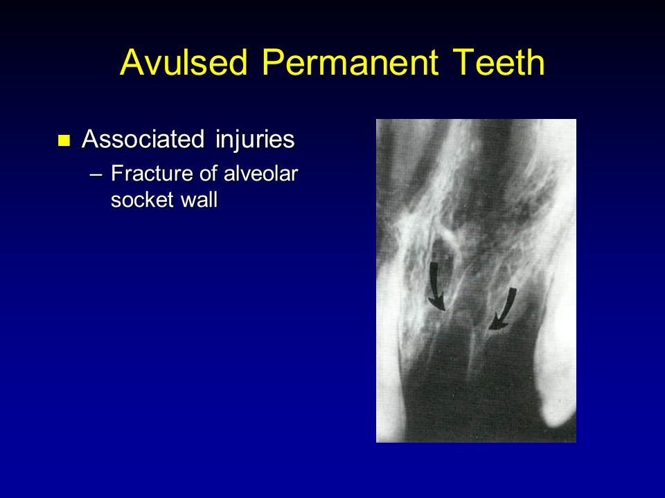 Avulsed Permanent Teeth Associated injuries Associated injuries –Fracture of alveolar socket wall