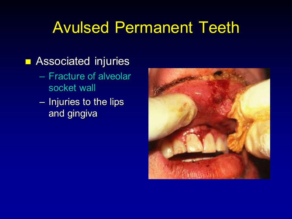 Avulsed Permanent Teeth Associated injuries Associated injuries –Fracture of alveolar socket wall –Injuries to the lips and gingiva