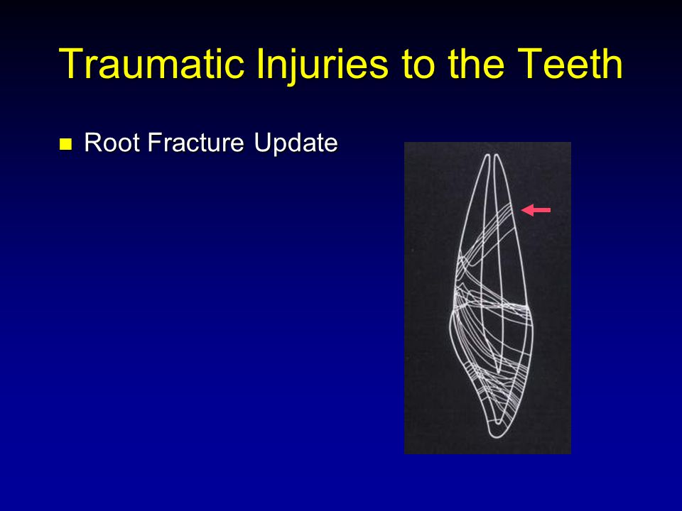 Traumatic Injuries to the Teeth Root Fracture Update Root Fracture Update