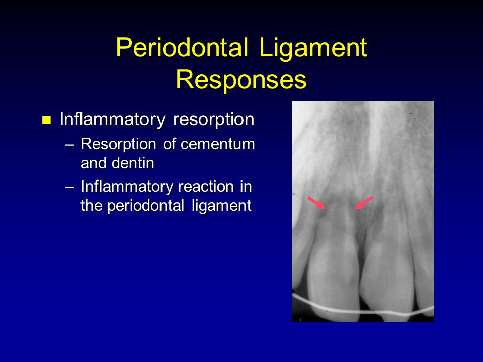 Periodontal Ligament Responses Inflammatory resorption Inflammatory resorption –Resorption of cementum and dentin –Inflammatory reaction in the periodontal ligament