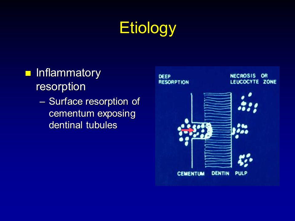 Etiology Inflammatory resorption Inflammatory resorption –Surface resorption of cementum exposing dentinal tubules