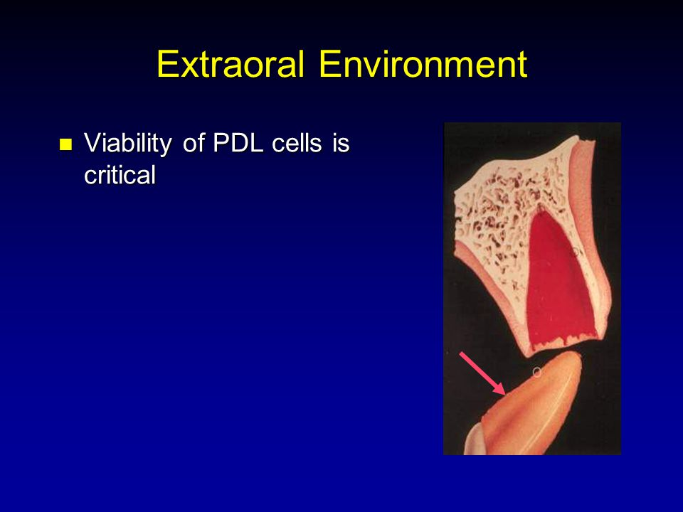 Extraoral Environment Viability of PDL cells is critical Viability of PDL cells is critical