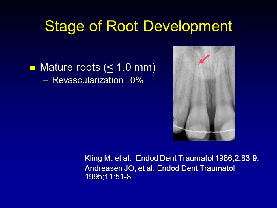 Stage of Root Development Mature roots (< 1.0 mm) Mature roots (< 1.0 mm) –Revascularization 0% Kling M, et al.
