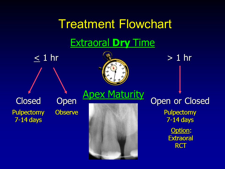 Treatment Flowchart < 1 hr > 1 hr Extraoral Dry Time Apex Maturity Closed Open Open or Closed Pulpectomy 7-14 days Observe Option: Extraoral RCT Option: Extraoral RCT Pulpectomy 7-14 days