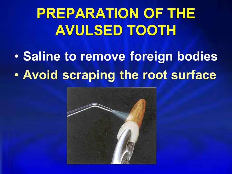 PREPARATION OF THE AVULSED TOOTH Saline to remove foreign bodies Avoid scraping the root surface