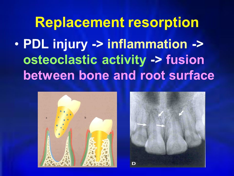 Replacement resorption PDL injury -> inflammation -> osteoclastic activity -> fusion between bone and root surface