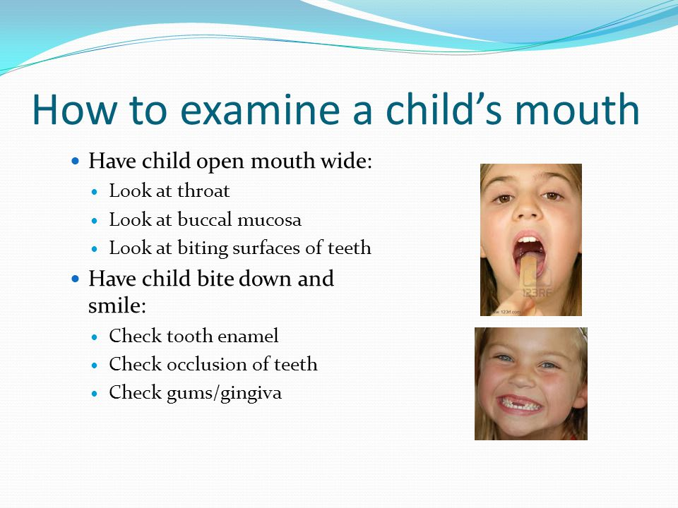 How to examine a childs mouth Have child open mouth wide: Look at throat Look at buccal mucosa Look at biting surfaces of teeth Have child bite down and smile: Check tooth enamel Check occlusion of teeth Check gums/gingiva