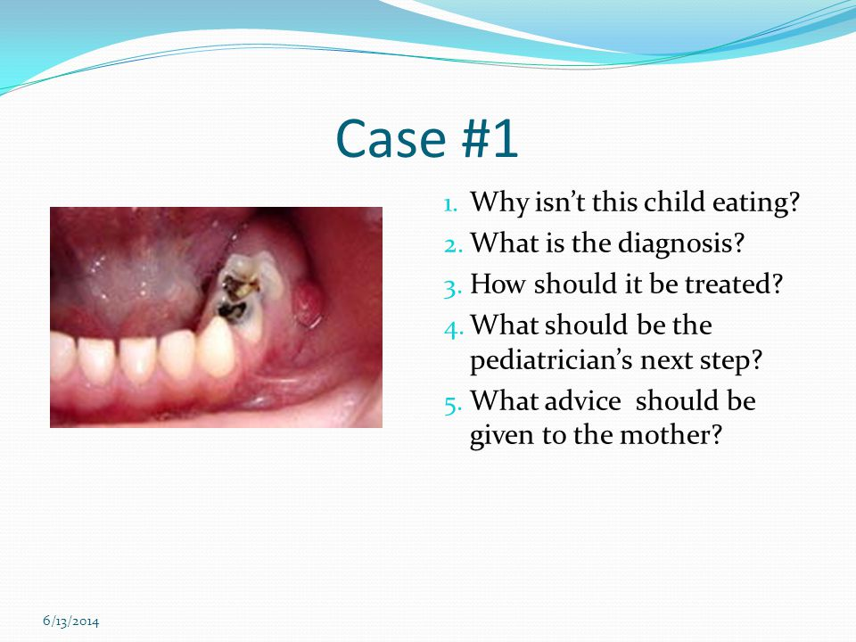 Case #1 1. Why isnt this child eating? 2. What is the diagnosis? 3. How should it be treated? 4. What should be the pediatricians next step? 5. What a