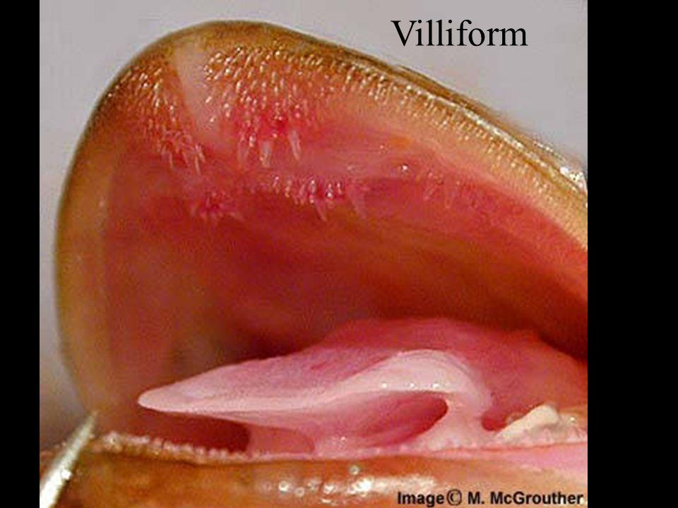 Villiform