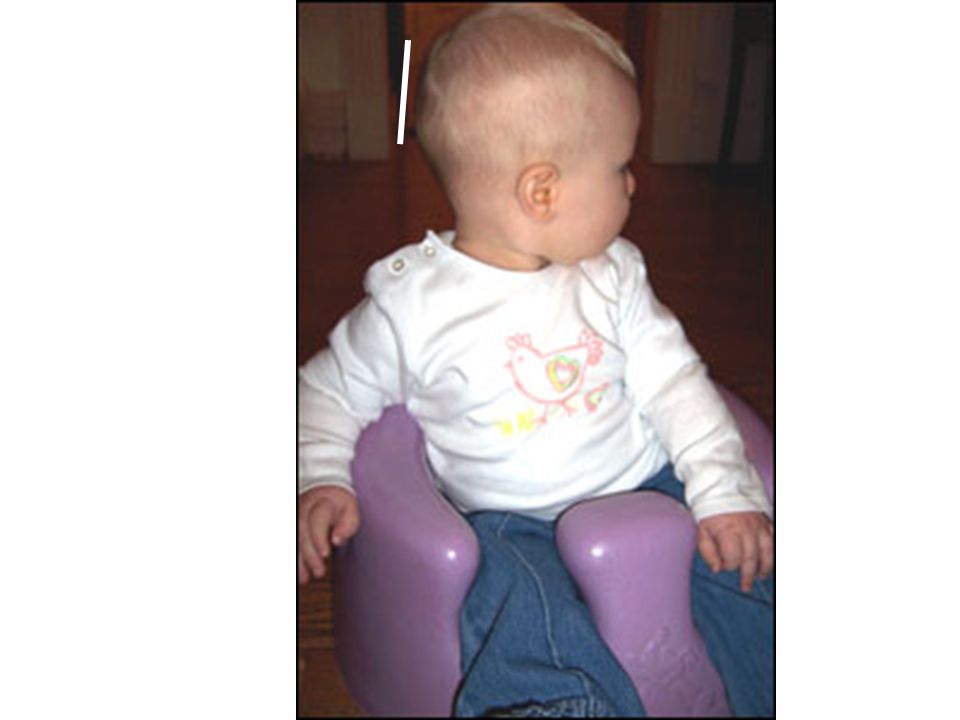 More common because of the recommendation for babies to sleep on their backs (Prevents SIDS) Changing a babys position during waking hours can prevent their heads from flattening.