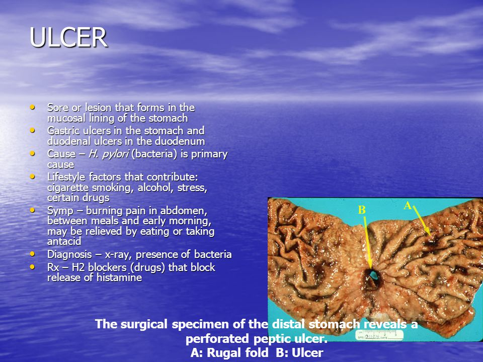 ULCER Sore or lesion that forms in the mucosal lining of the stomach Sore or lesion that forms in the mucosal lining of the stomach Gastric ulcers in
