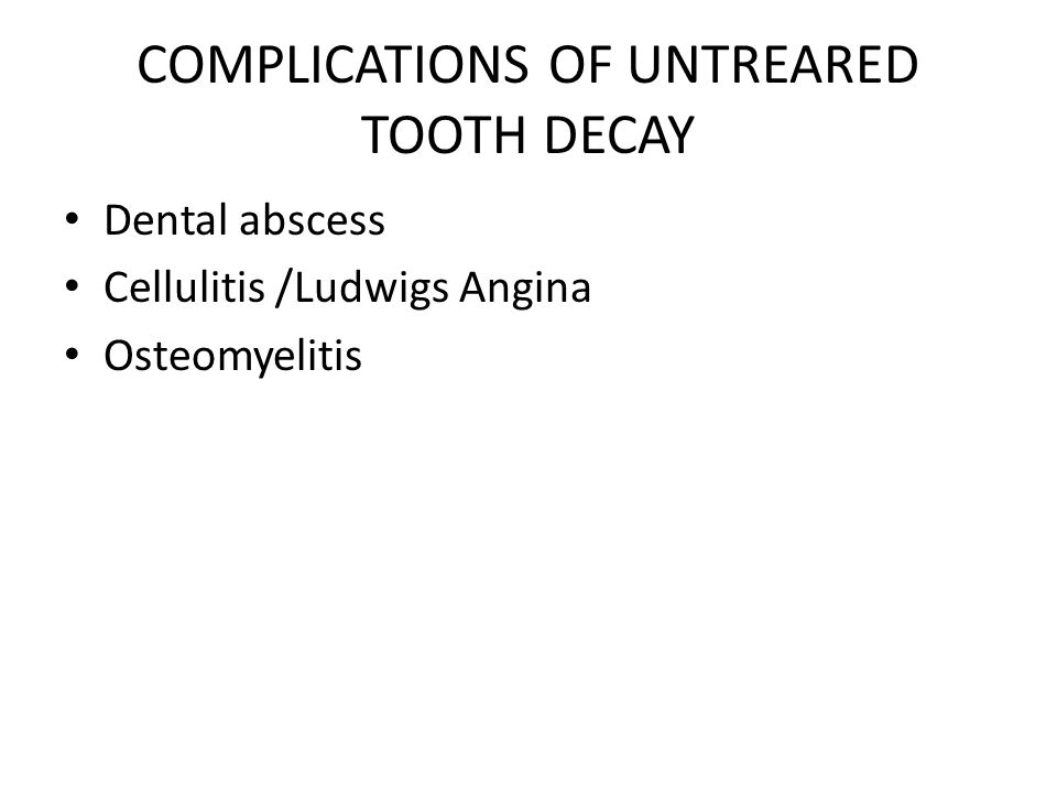 COMPLICATIONS OF UNTREARED TOOTH DECAY Dental abscess Cellulitis /Ludwigs Angina Osteomyelitis
