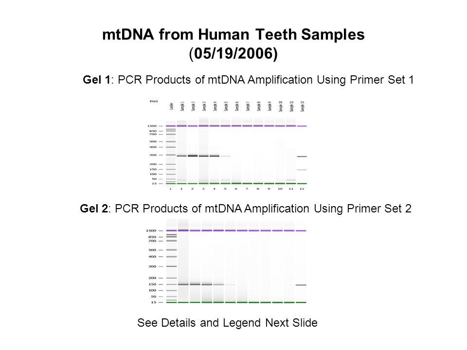 Lane Identification Samples Lanes 1 and 2: 3 pieces of tooth/extraction Lanes 3 and 4: 1 piece of tooth/extraction Lane 5: 2 pieces of tooth/extraction Lane Identification for both gels: Lanes 1 to 5: PCR products of amplified mtDNA gene on purified DNA samples.