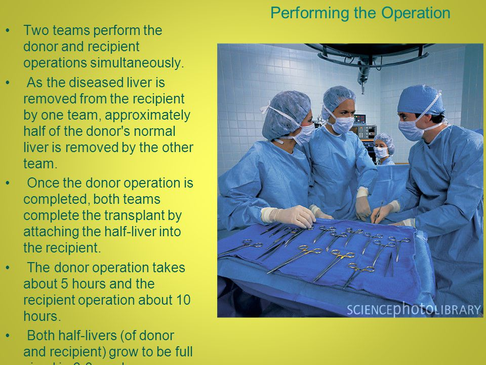 Performing the Operation Two teams perform the donor and recipient operations simultaneously.