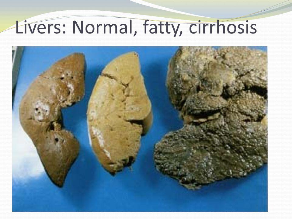 Livers: Normal, fatty, cirrhosis