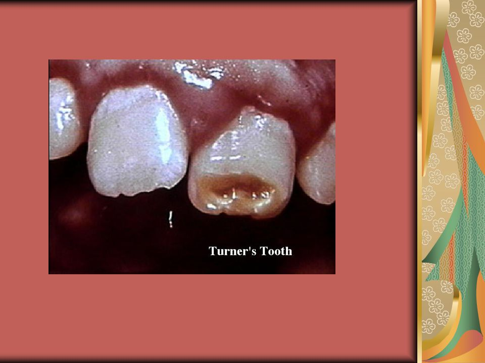 DENTIN IS GRAY, BROWN OR YELLOWTOOTH HAS AN UNUSUAL TRANSLUCENT HUE.-PULP CHAMBERS AND ROOT CANALS ARE COMPLETELY FILLED IN WITH DENTIN.