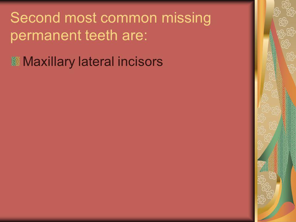 Third most common missing tooth is: Mandibular second premolar