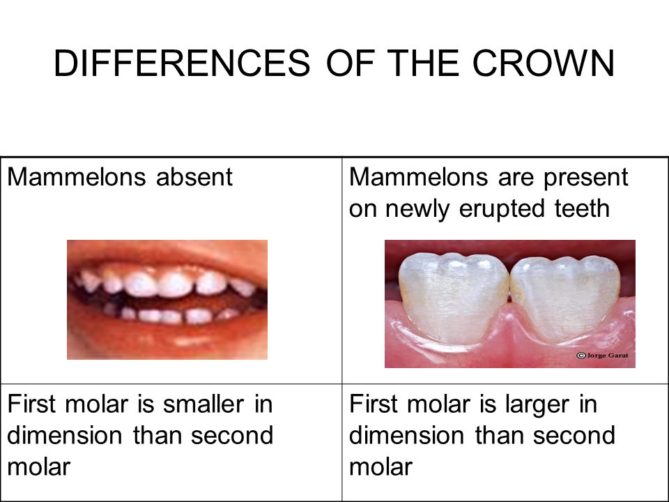 DIFFERENCES OF THE CROWN Mammelons absentMammelons are present on newly erupted teeth First molar is smaller in dimension than second molar First mola