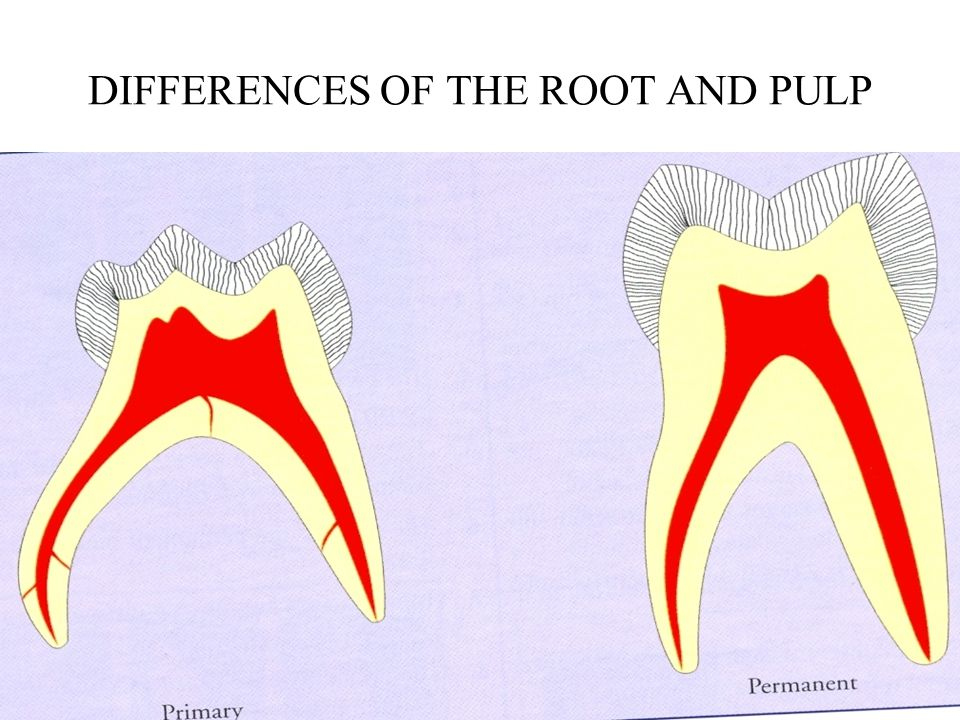 DIFFERENCES OF THE ROOT AND PULP